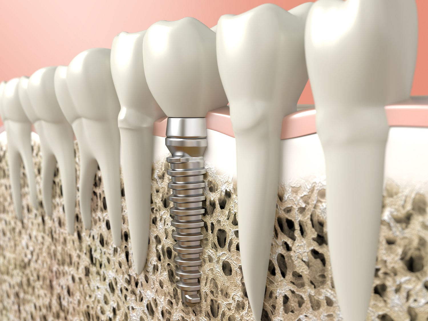 why dental implants are popular