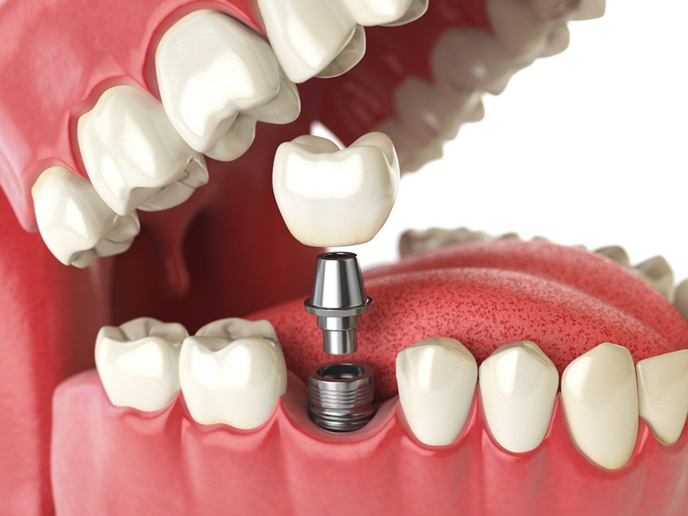 the value of finding the right dental implants
